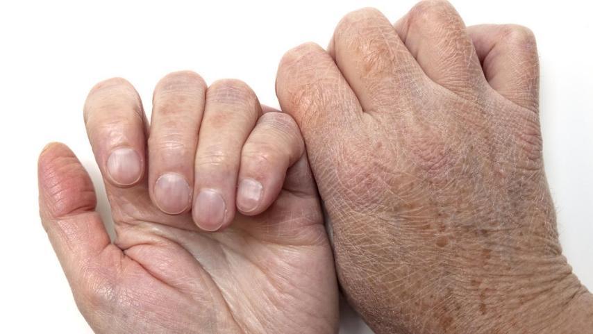Как устранить сухость кожи рук